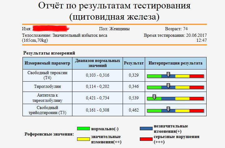 Отчет в таблице 3
