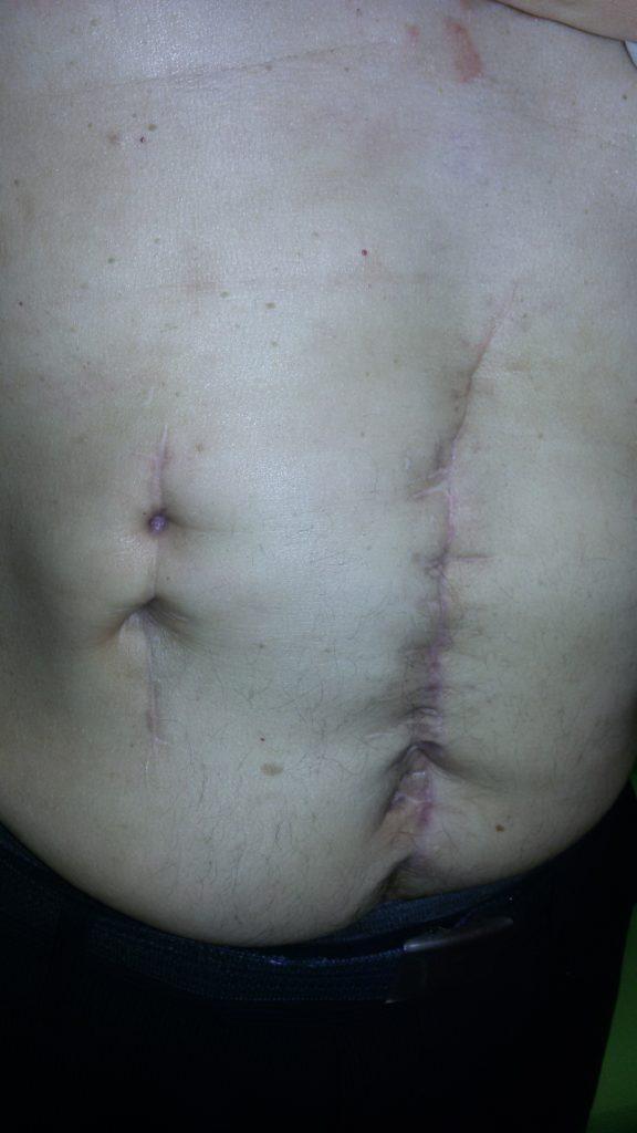 результат Пациент обратился с гноетечением, не заживающими ранами, болями, общей слабостью.