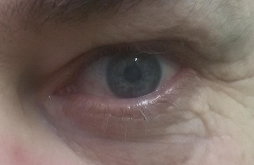 Полная слепота на левый глаз. Противопоказания к хирургической замене хрусталика.